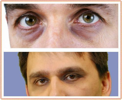 Как избавиться от синяков под глазами мужчине. Почему появляются синяки под глазами у мужчин: причина – проблемы со здоровьем