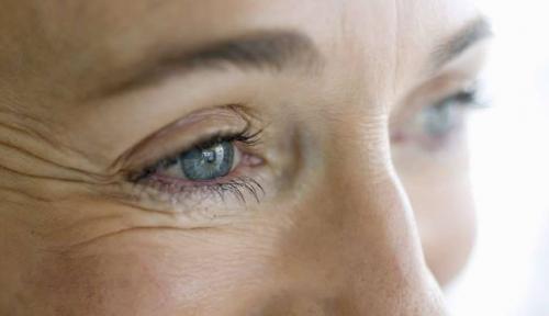 Маска для лица в домашних условиях замена ботокса. Маски с эффектом ботокса от морщин вокруг глаз в домашних условиях, отзывы